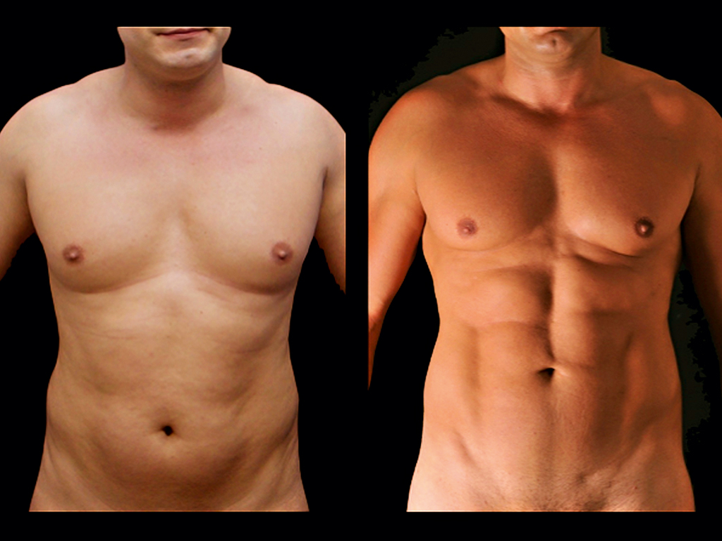 A patient before and after their liposculpture procedure