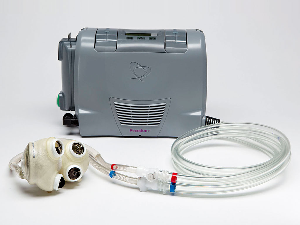 SynCardia, winner of the 2014 New Economy Award for Best Medical Device Company, explains how its temporary Total Artificial Heart bridges the gap to a donor heart transplant